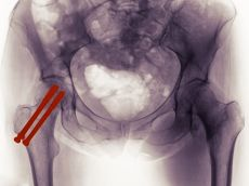 screws in hip joint tendonitis