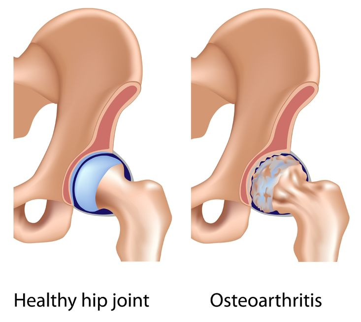 showing healthy hip joint and osteoarthritis side by side