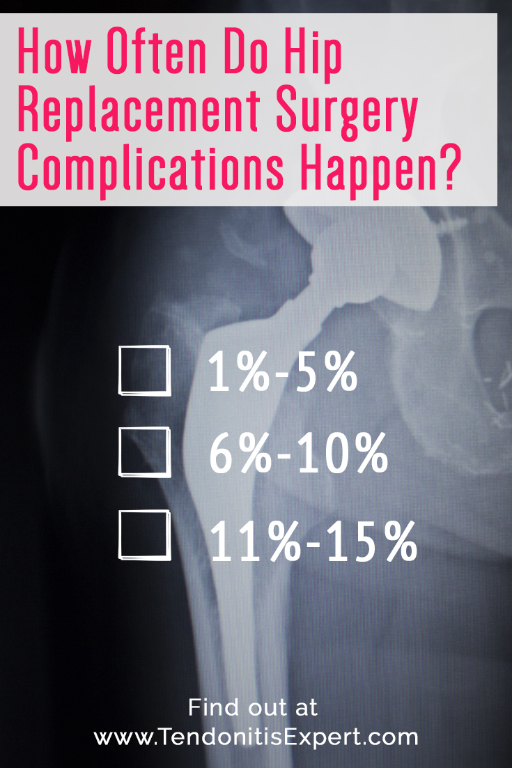 How Often Do Hip Replacement Surgery Complications Happen?  - 1%-5% - 6%-10% - 11%-15%   Find out at www.TendonitisExpert.com/hip-replacement-surgery.html