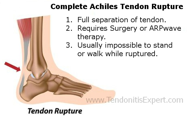 completely torn achilles tendon rupture graphic