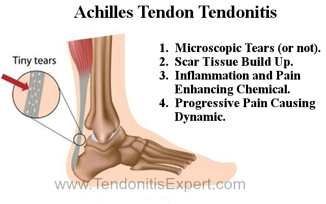 Torn achilles tendon page tendonitis graphic