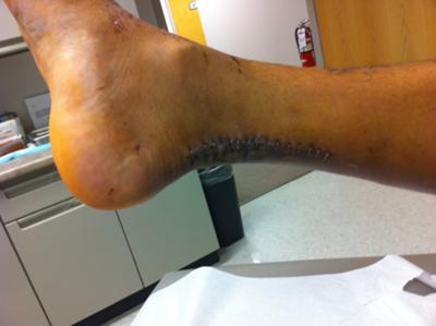 Post achilles rupture reattachment surgery