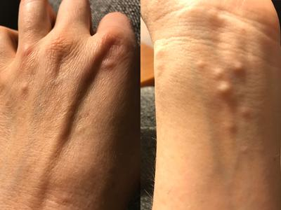 Recurring Small Ganglion Cysts