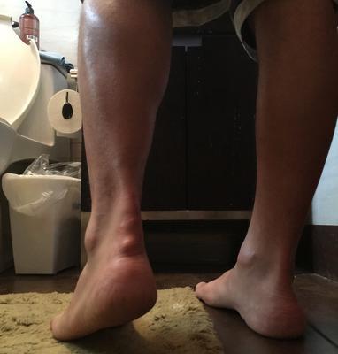 Achilles Tendon Cyst growing after achilles tendon rupture surgery