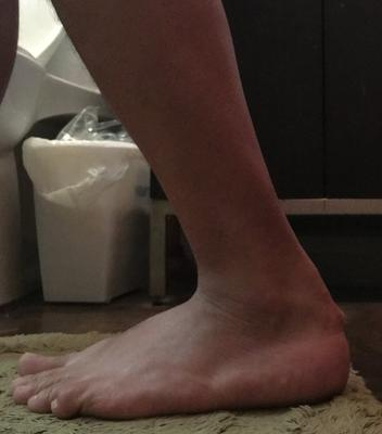 side view of achilles tendon cyst below rupture
