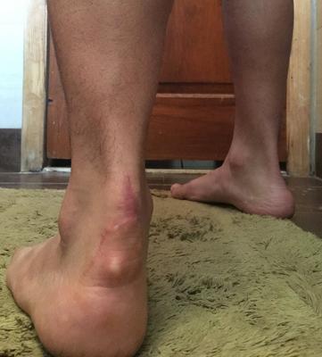 Cyst formation under achilles tendon repair