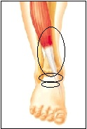 pain at top front of ankle