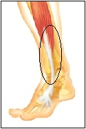 pain at front lateral side of lower leg