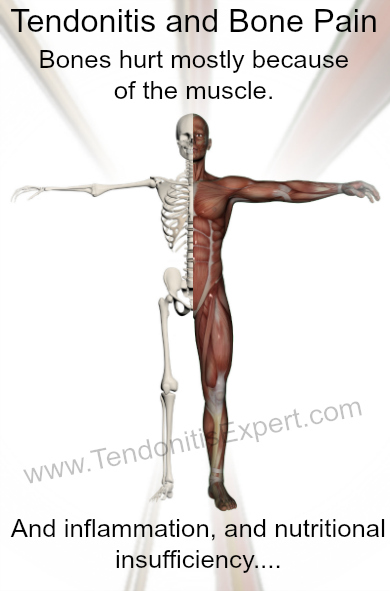 Tendonitis And Bone Pain