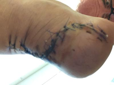 Gnarly incision from achilles debridement surgery