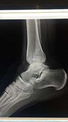 Xray 2 of broken fibula from low vitamin d 3ng/ml deficiency