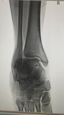 Xray 3 of broken fibula from low vitamin d 3ng/ml deficiency
