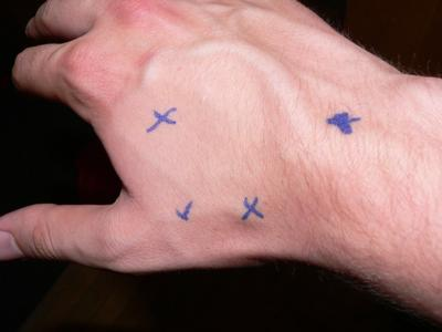 marking of pain on right wrist/hand