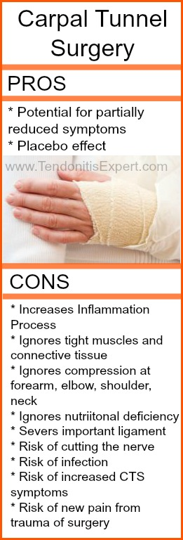 Pros and Cons of Carpal Tunnel Surgery