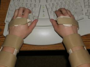 ergonomic keyboard and wrist splints