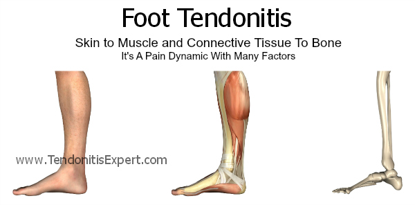 foot tendonitis, tendonitis in foot - 100% fixable, Sphenoid