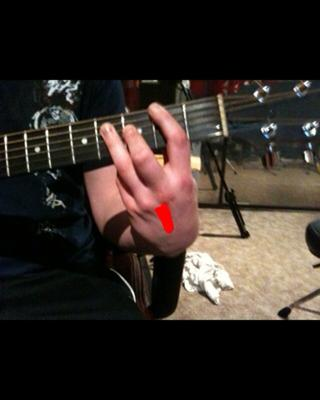 guitar tendonitis strain pain in between knuckles