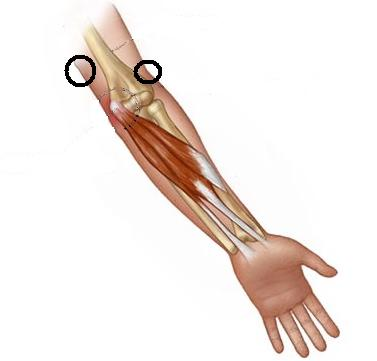 Barry's elbow pain location anatomy graphic