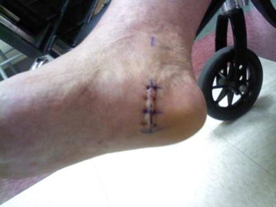 post surgery heel spur removal