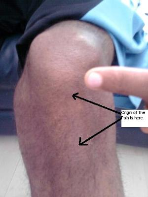Is this pain in the knee from Jumpers Knee?