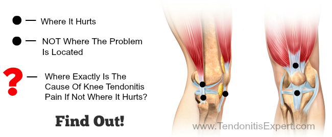 cause of knee tendonitis location picture graphic