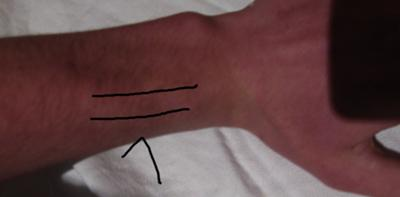 Tendon pain from playing guitar, back of wrist, image picture