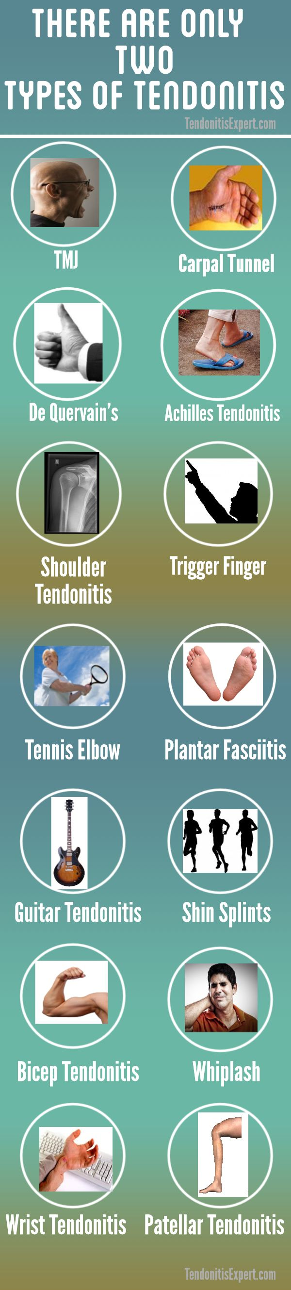 tendonitis types infographic