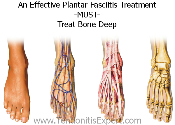 Effective Plantar Fasciitis Treatment all layers