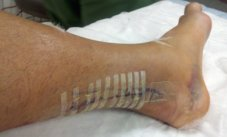 two days post Achilles tendon reattachment surgery picture