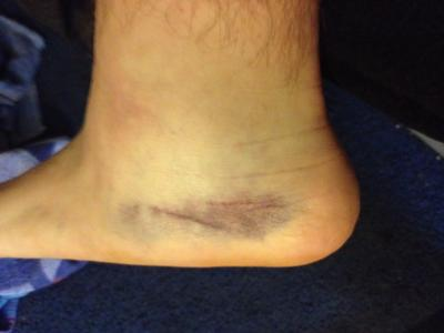 Pooling in ankle bruising from shin impact