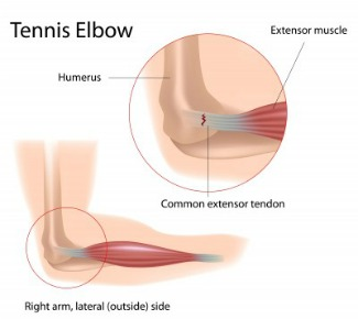tennis elbow tendonitis anatomy picture