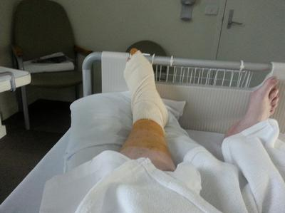 Woke Up After Toe Tumor Surgery & Could Not feel My Foot