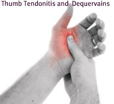 thumb tendonitis pain picture, dequervains tendonitis thumb
