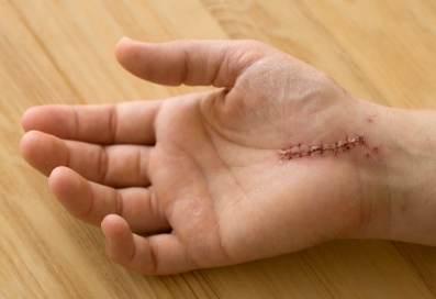 Wrist surgery scar picture