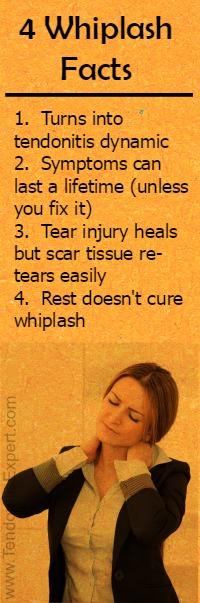 4 whiplash neck injury facts