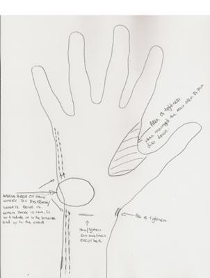 bilateral wrist tendonitis symptoms drawing