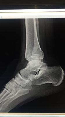 Xray 2 of broken fibula from low vitamin d 3ng/ml deficiency