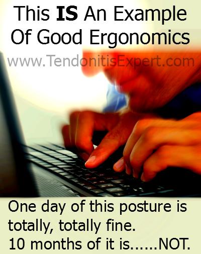 Bad ergonomics is good ergonomics for tendonitis