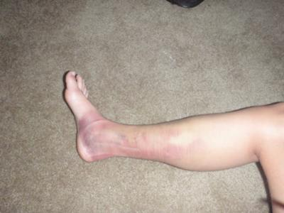 Picture of injury leading to myositis Ossificans, swelling, bruising, and pain