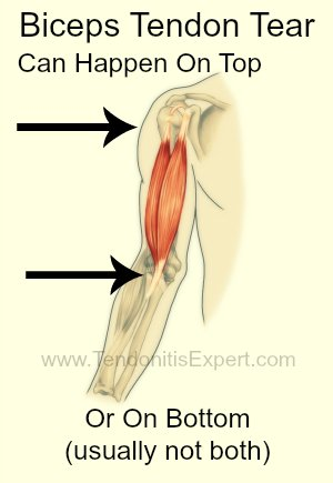 Torn Biceps Tendon Can Happen On Top Or Bottom